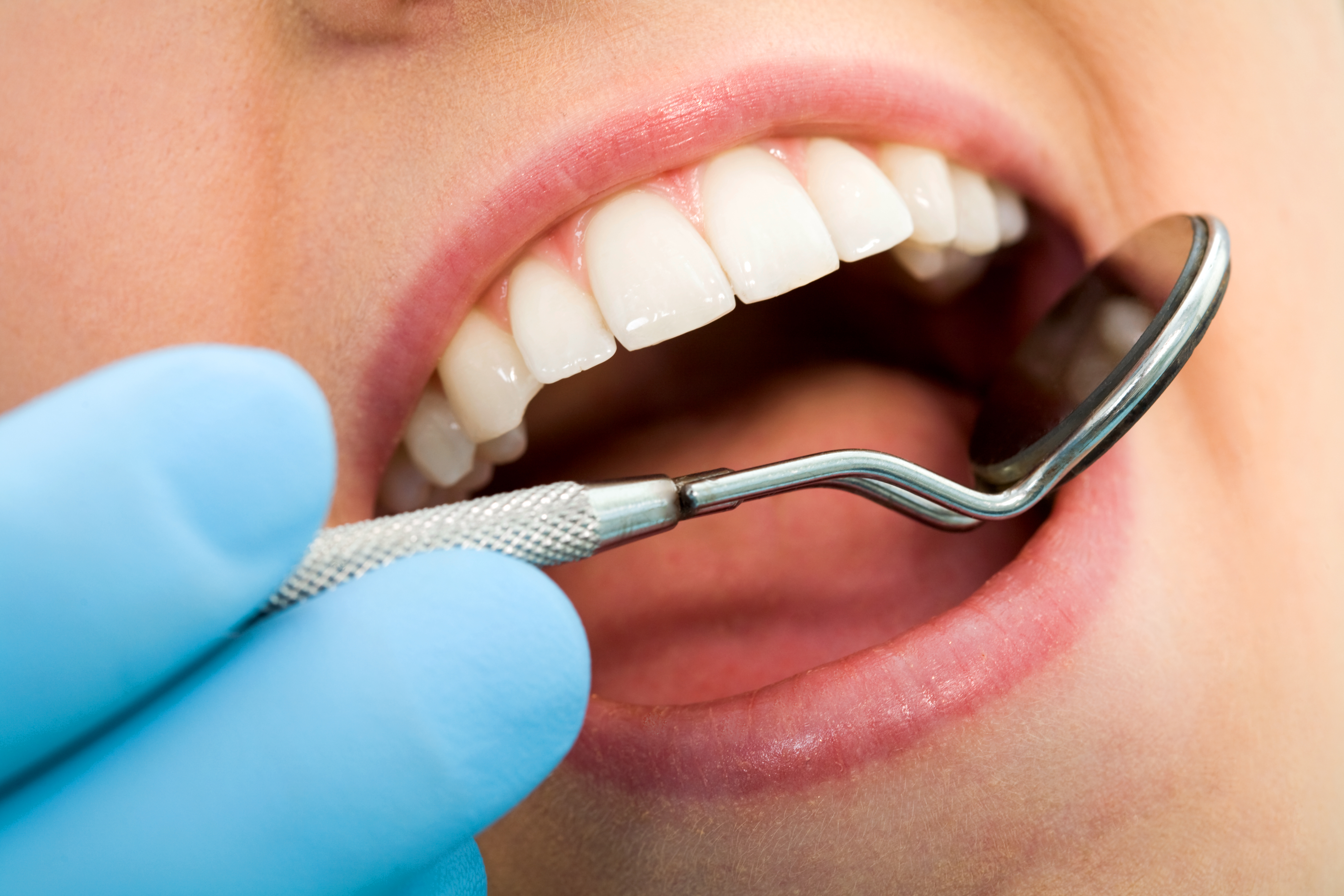 how to sell dental treatment